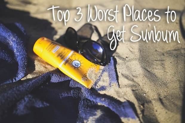 top 3 worst places for sunburn